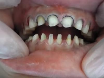 歯列矯正?
